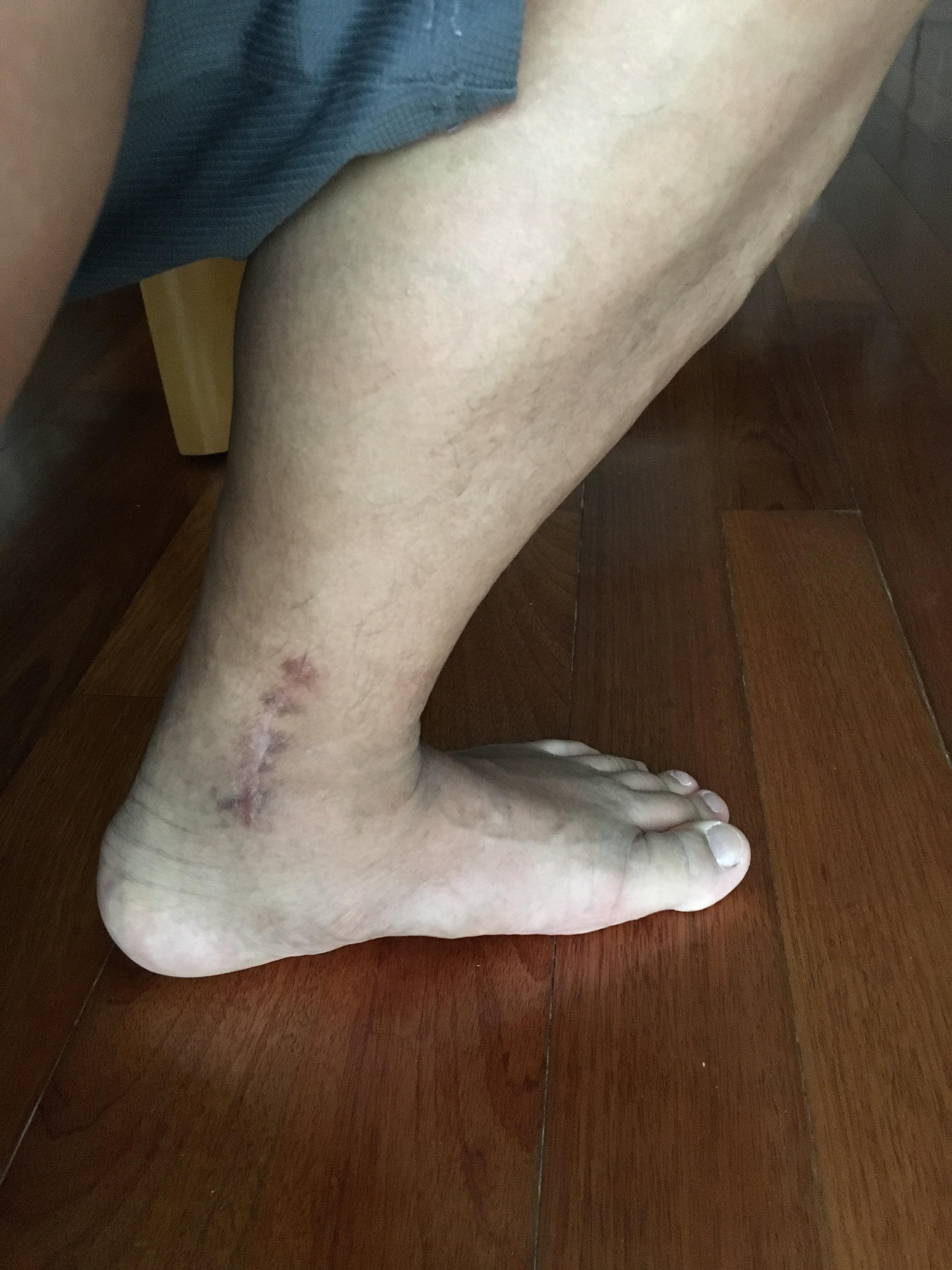 3月頃の足首の様子まだ曲がりが悪く傷跡も残る